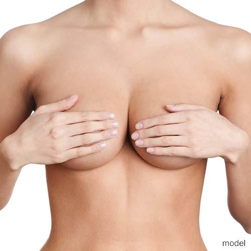 0b59670e39071 Breast Reduction in Scottsdale