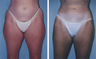 CoolSculpting® Before and After Photos