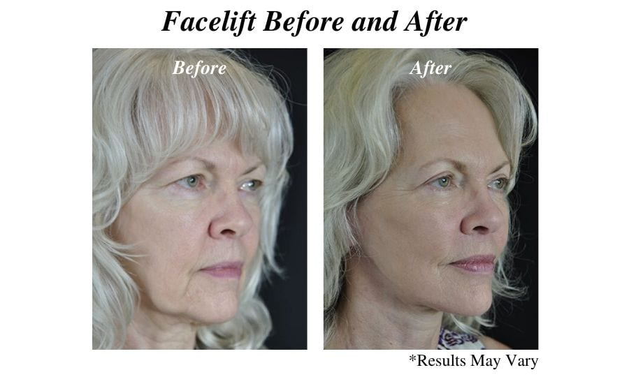 Before and after image showing the results of a facelift surgery performed in Scottsdale, AZ.