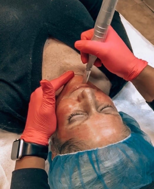 Woman undergoing microneedling treatment in office.
