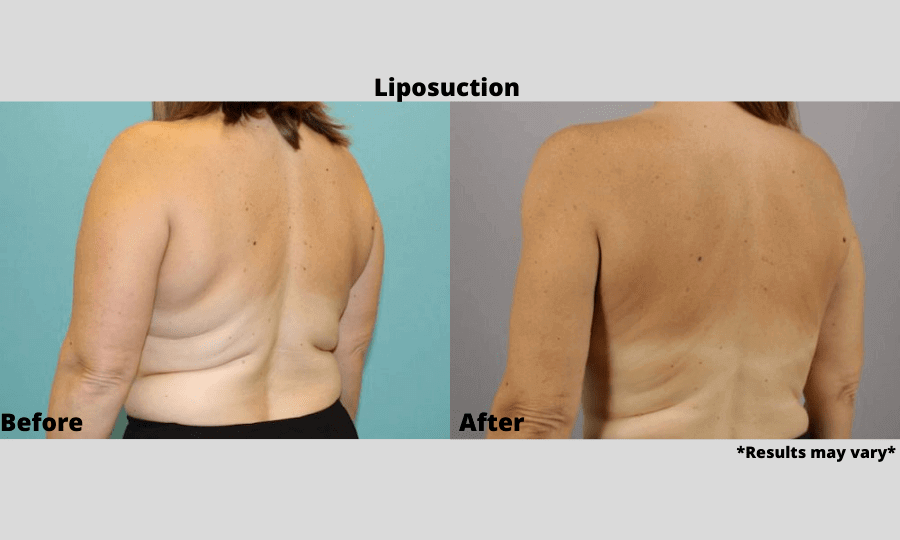 Before and after image showing the results of liposuction on the back performed in Scottsdale, AZ.